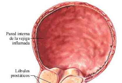 前列腺炎病发位置探寻